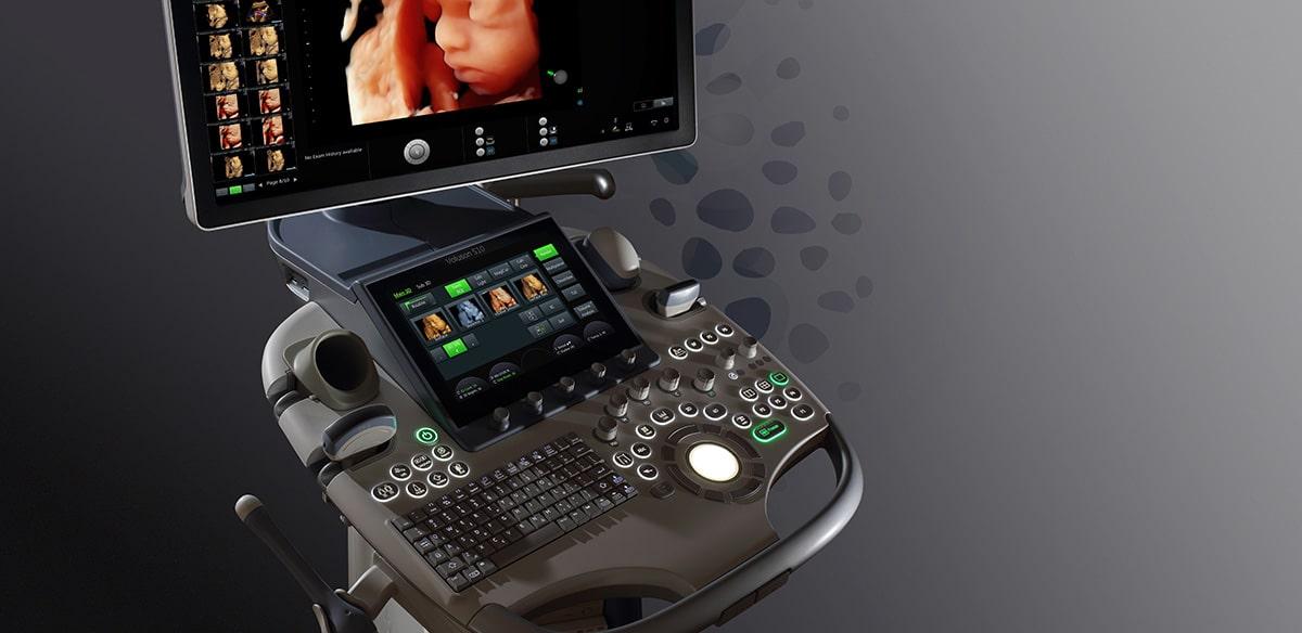 3D/4D Ultrazvuk
