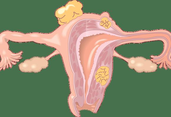 Konizacija grlića materice