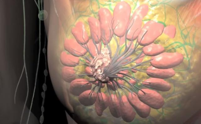 Srbija na drugom mestu u Evropi po smrtnosti od raka dojke