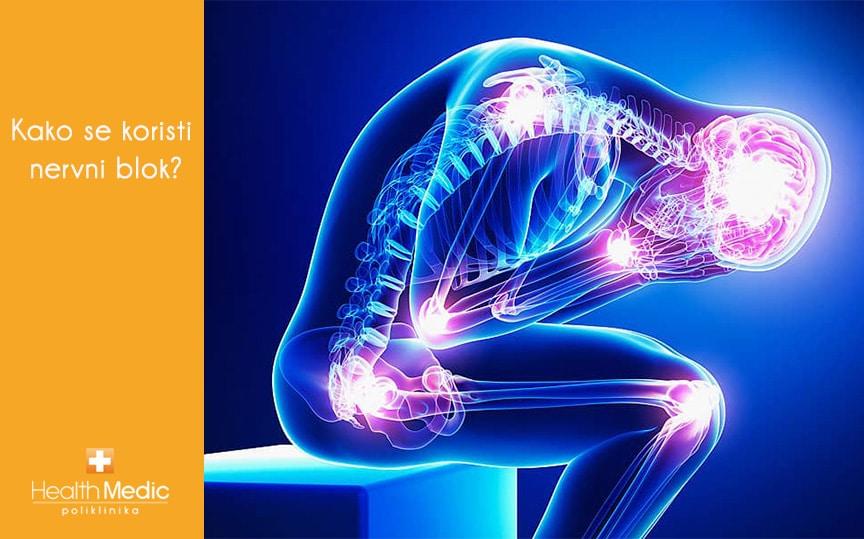 Kada se koristi nervni blok?